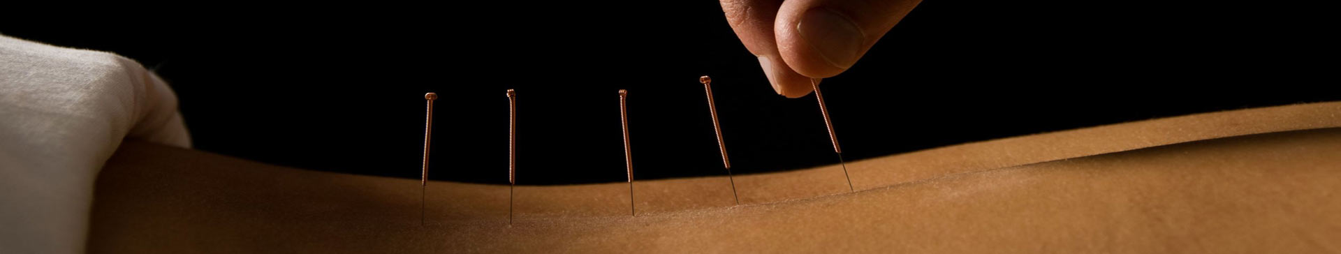 Acupuncture, headaches, back pain